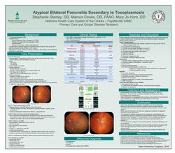 Atypical Bilateral Panuveitis Secondary to Toxoplasmosis
