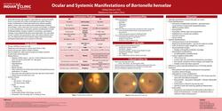 Ocular and Systemic Manifestations of Baronella henselae