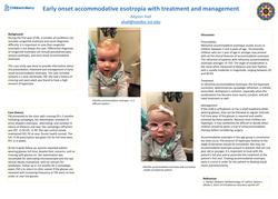 Early onset accommodative esotropia: treatment and management