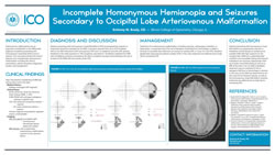 Incomplete Homonymous Hemianopia and Seizures Secondary to an Occipital Lobe Arteriovenous Malformation