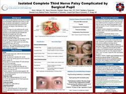 Isolated Complete Third Nerve Palsy Complicated by Surgical Pupil