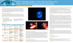 HSV Keratouveitis in the Second Eye of a Non-Immunocompromised Individual