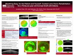 Breathing Easy, for the Patient and Yourself: Contact Lens Vision Rehabilitation for a Thirty-six-year-old Corneal Graft with Edema