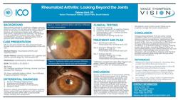 Rheumatoid Arthritis: Looking Beyond the Joints