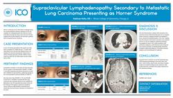 Supraclavicular lymphadenopathy secondary to metastatic lung carcinoma presenting as Horner Syndrome