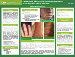 Case Report: Skin lesions and hypopigmentation associated with use of Restasis