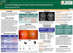 A Critical Diagnosis of Early Foster Kennedy Syndrome