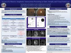 A Case of a Massive Anaplastic Astrocystoma Presenting as Optic Atrophy and Visual Field Loss