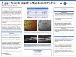 A Case of Anemic Retinopathy in Myelodysplastic Syndrome