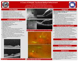 Diabetic peripapillary tractional retinal detachment