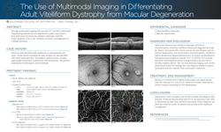 The Use of Multimodal Imaging in Differentiating Adult Vitelliform Dystrophy from Age-Related Macular Degeneration