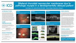 Bilateral choroidal neovascular membranes due to pathologic myopia in a developmentally delayed patient