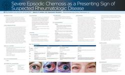 Severe Recurrent Chemosis as a Presenting Sign of Suspected Rheumatologic Disease