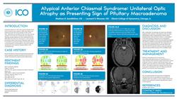 Atypical Anterior Chiasmal Syndrome: Unilateral Optic Nerve Atrophy as Presenting Sign of Pituitary Macroadenoma