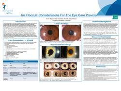 Iris Flocculi: Considerations For The Eye Care Provider