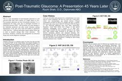 Post-Traumatic Glaucoma: A Presentation 45 Years Later