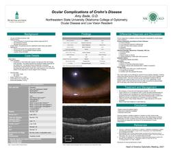 Ocular Complications of Chron's Disease
