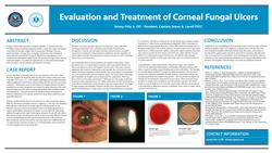 The Evaluation and Treatment of Corneal Fungal Ulcers