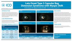 Late-onset Type 3 Capsular Bag Distension Syndrome with Myopic Shift