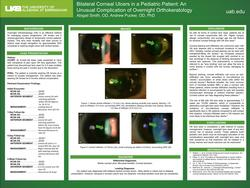 Bilateral Corneal Ulcers in a Pediatric Patient: An Unusual Complication of Overnight Orthokeratology
