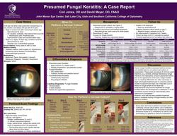 Presumed Fungal Keratitis: A Case Report