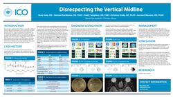 Disrespecting the Vertical Midline