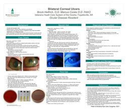 Bilateral Corneal Ulcers in Noncompliant Contact Lens wearer with a History of Incarceration.