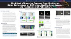 The Effect of Posterior Capsular Opacification and Other Confounders on OCT Image Quality, Scan Accuracy, and Management of Patient Care
